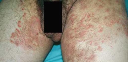 El bacteriófago a atopicheskom la dermatitis